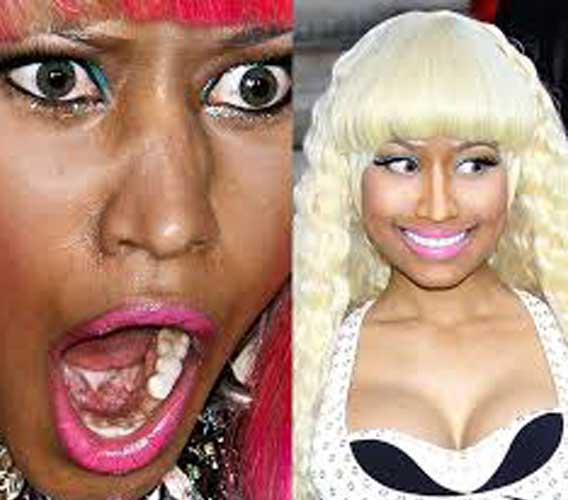 Nicki-Minaj-Skin-Lightening