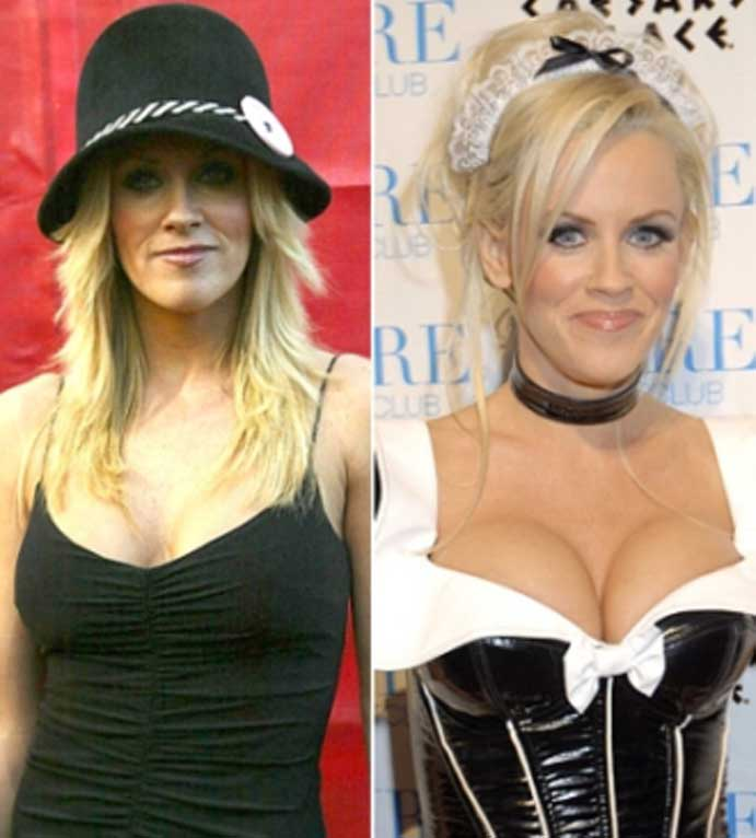 Jenny-McCarthy's-breast-augmentation
