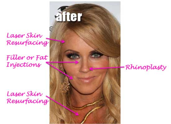 Jenny-Mccarthy-Plastic-Surgery-Procedures