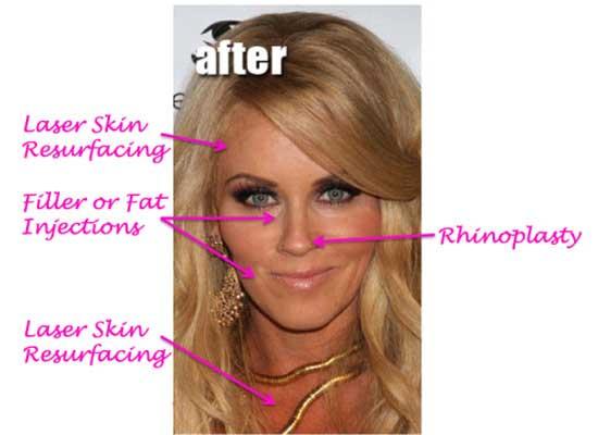 Jenny-Mccarthy-Plastic-Surgery-Procedures