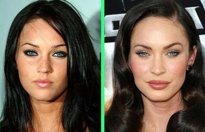Megan Fox lip fillers