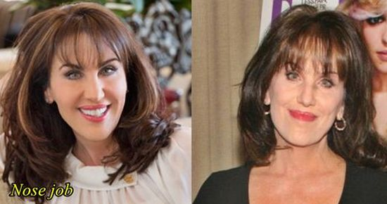 robin-mcgraw-plastic-surgery