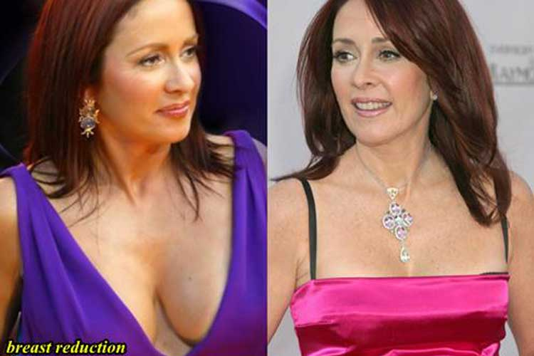 patricia heaton boobs