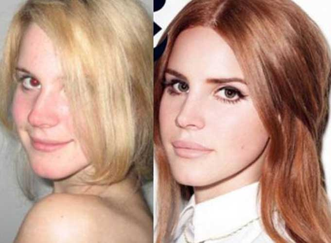 Lana Del Rey plastic surgery