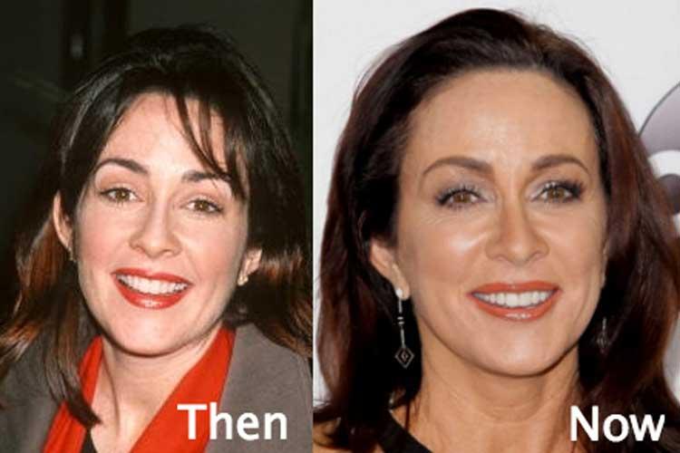 Patricia-Heaton-Plastic-Surgery