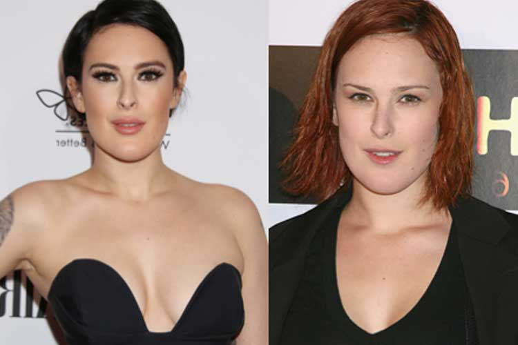 Rumer Willis plastic surgery