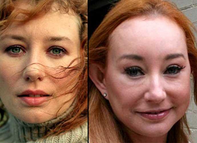 Tori Amos Plastic Surgery