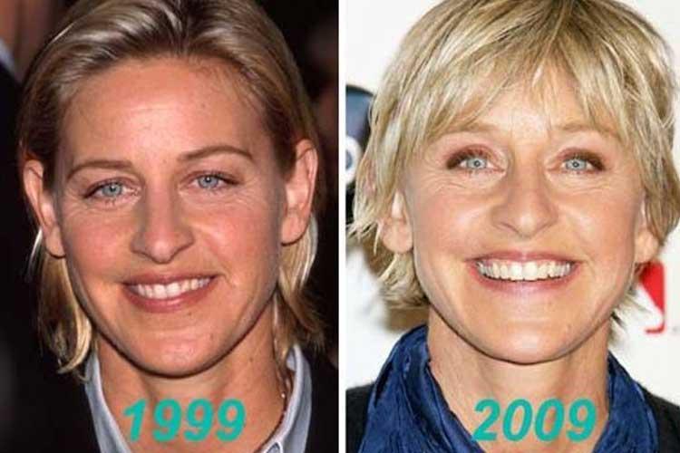 Ellen DeGeneres Plastic Surgery