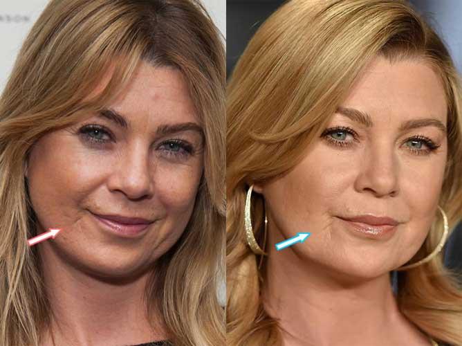 Ellen Pompeo Plastic Surgery