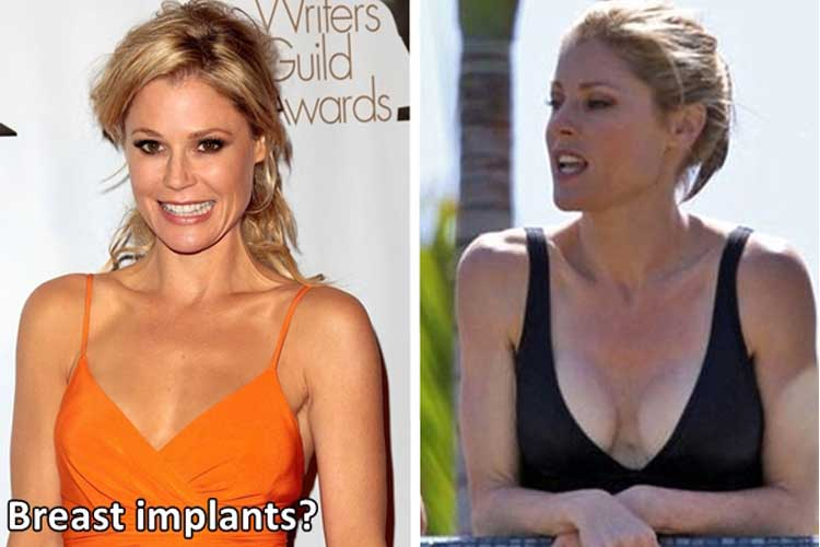 Julie Bowen plastic surgery