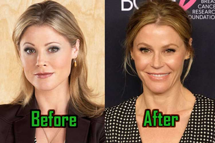 Julie Bowen plastic surgery: Facelift, Nose Job, Boob job