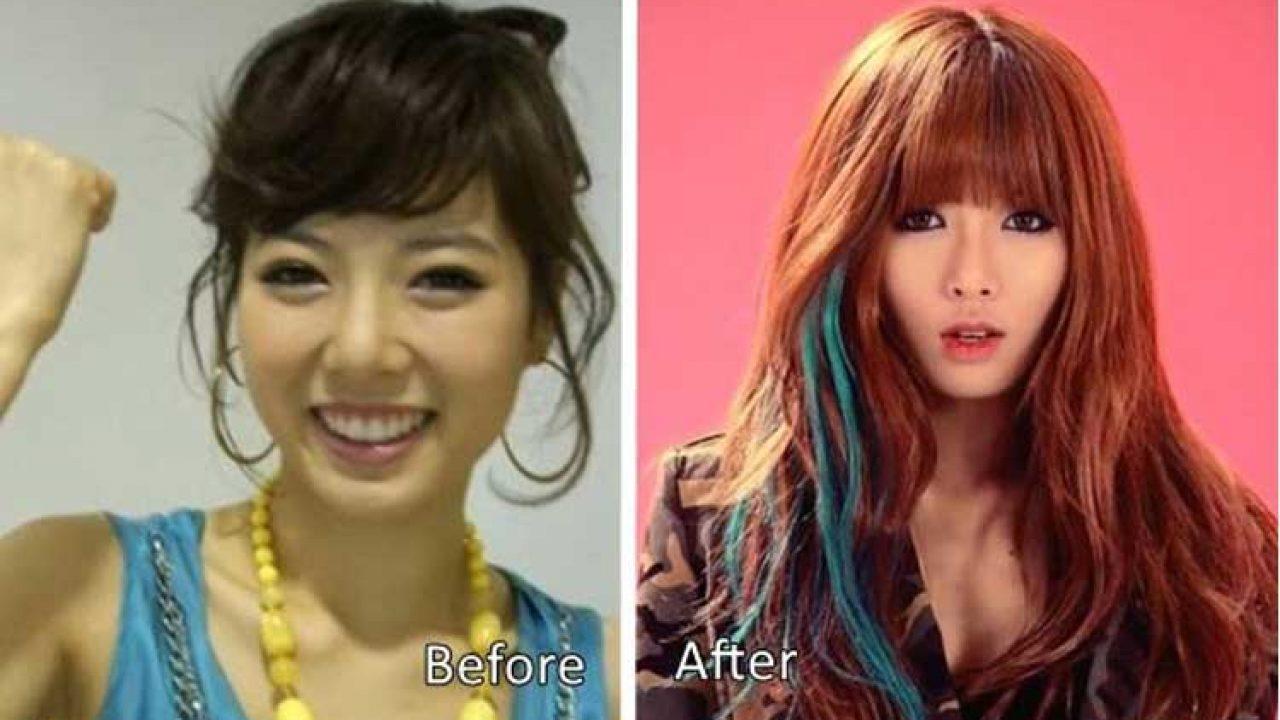 Kim Hyuna Plastic Surgery: Eyelid Surgery, Nose Job, Jawline