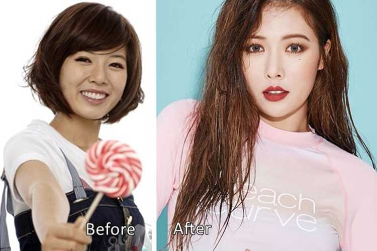 Kim Hyuna Plastic Surgery