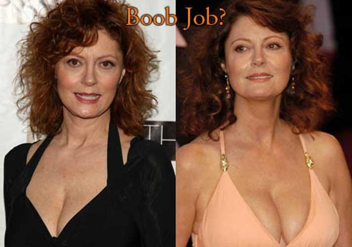 Susan sarandon boobs real