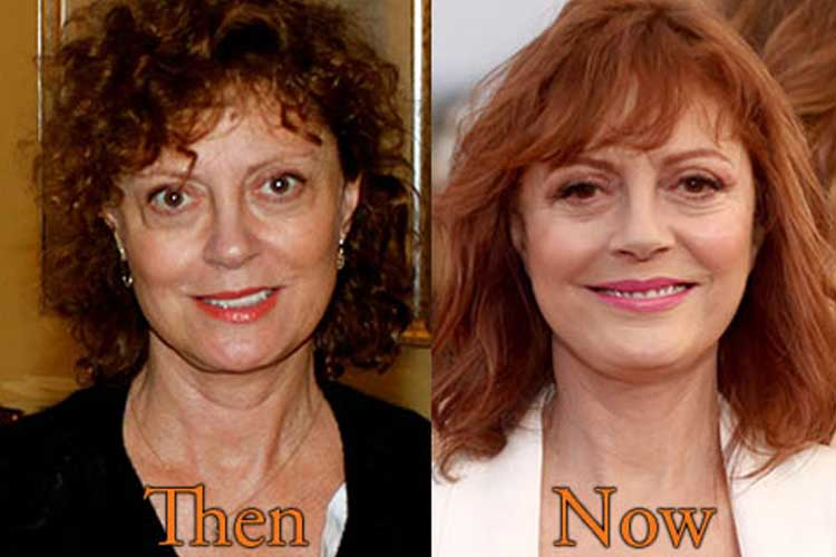 Susan Sarandon plastic surgery