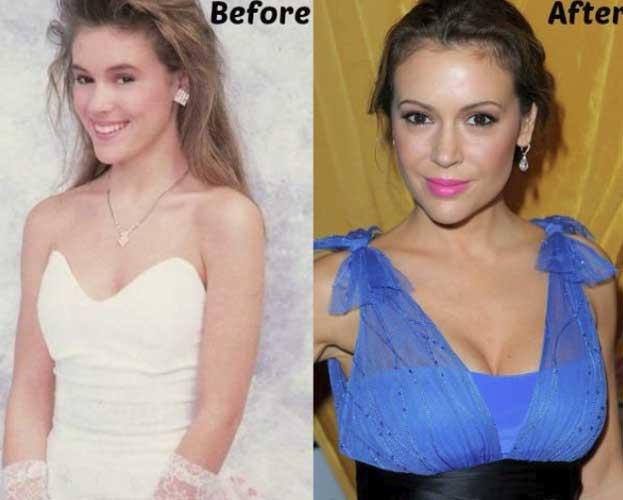 Alyssa Milano Plastic Surgery