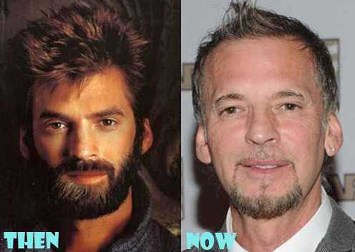 Kenny Loggins plastic surgery