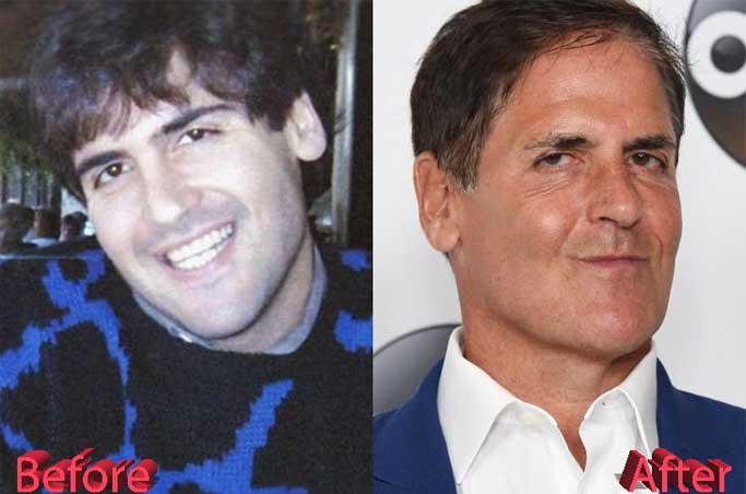 Mark Cuban plastic surgery