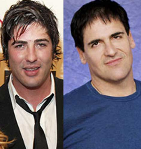 Mark Cuban plastic surgery