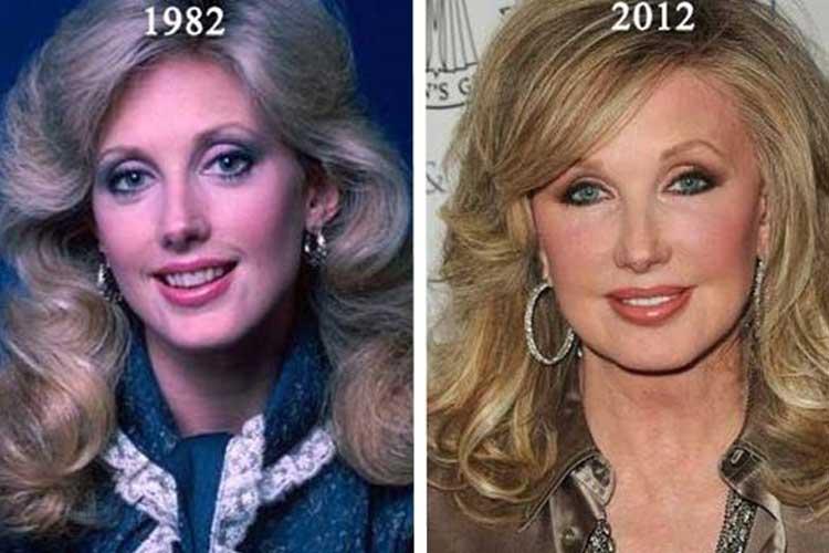 Morgan Fairchild Plastic Surgery