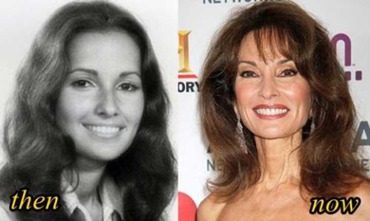 Susan Lucci plastic surgery