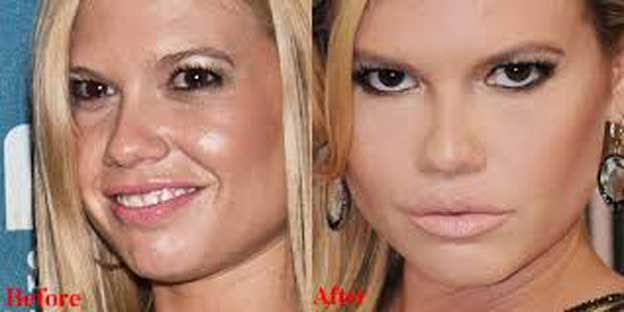 Chanel West Coast plastic surgery