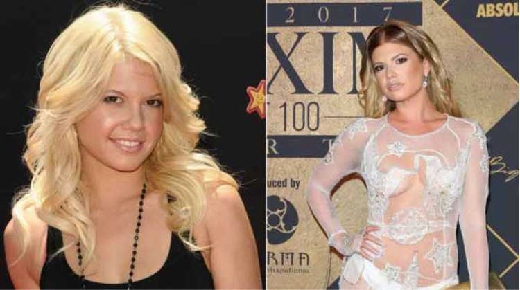 did chanel west coast get breast implants