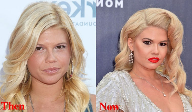 Chanel West Coast plastic surgery