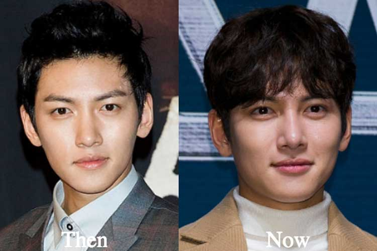 Ji Chang Wook Plastic Surgery