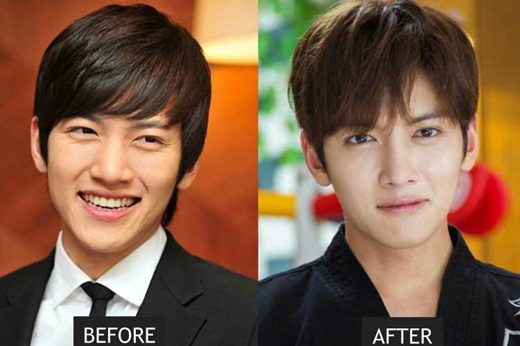 Ji Chang Wook Plastic Surgery