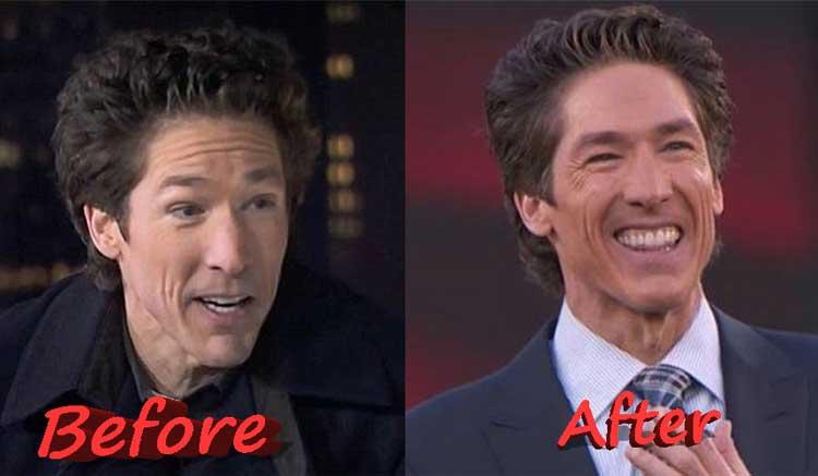 Joel Osteen plastic surgery