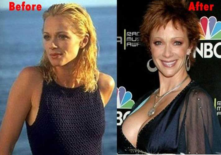 Lauren Holly Plastic surgery
