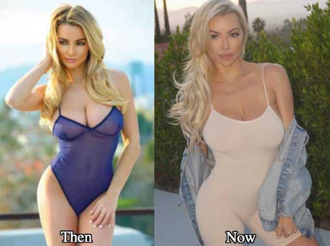 Lindsey Pelas plastic surgery