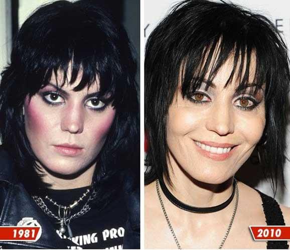 Joan Jett plastic surgery