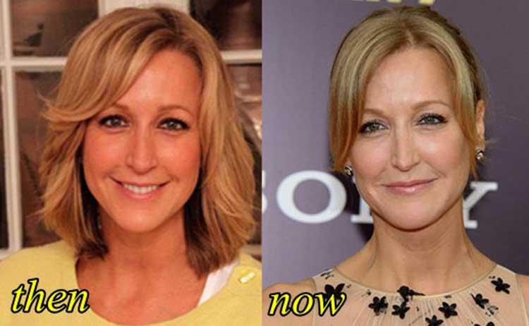 Lara Spencer plastic surgery