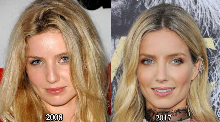Annabelle-Wallis-nose-job