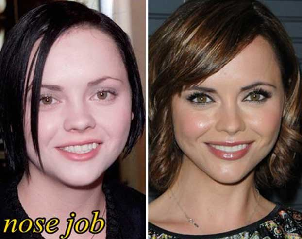 christina ricci plastic surgery