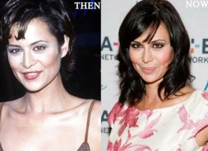 Catherine Bell plastic surgery