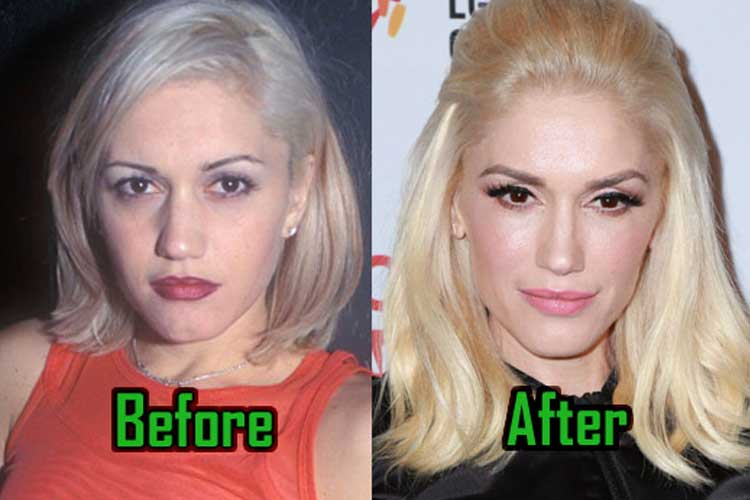 Gwen Stefani Plastic Surgery