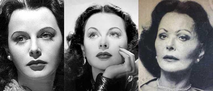 Hedy Lamarr Plastic Surgery