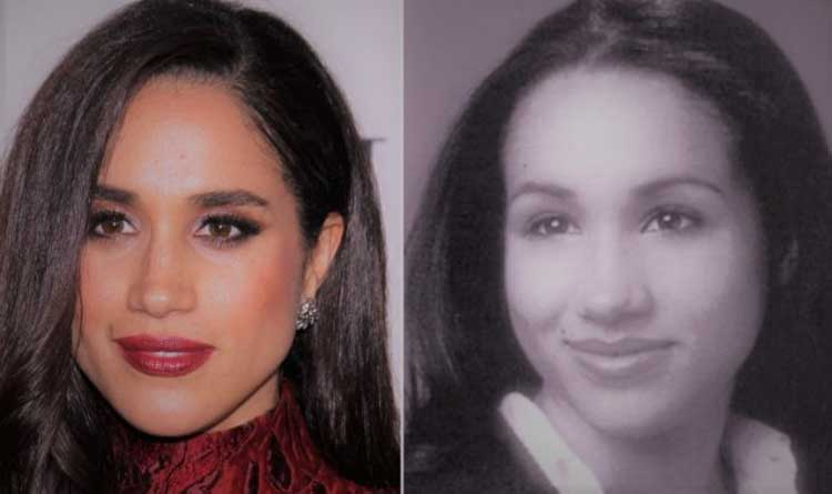meghan markle nose job