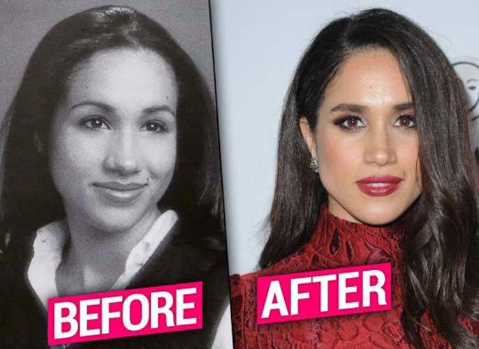 meghan markle plastic surgery