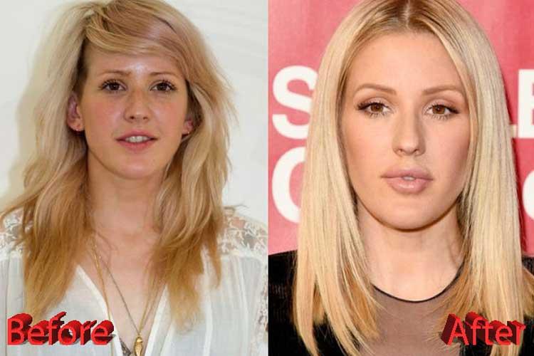 Ellie Goulding plastic surgery