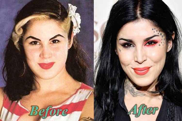 Kat Von D plastic surgery