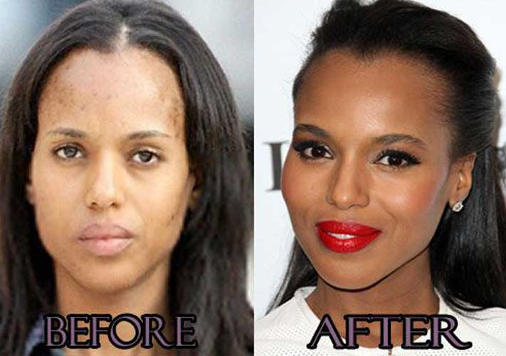 Kerry Washington plastic surgery