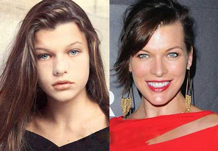 Milla Jovovich plastic surgery