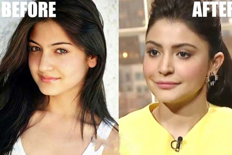 Anushka Sharma plastic surgery