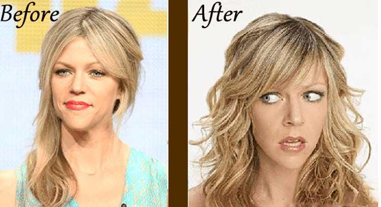 Kaitlin Olson plastic surgery