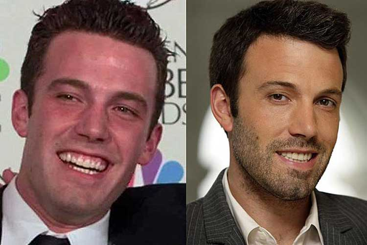 Ben Affleck Plastic Surgery