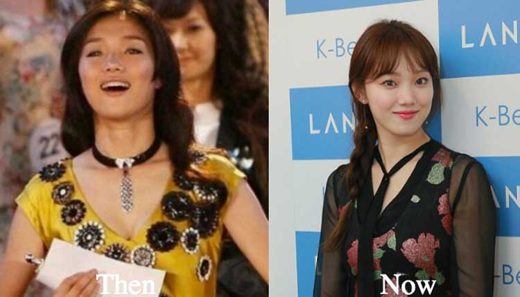 Lee Sung Kyung plastic surgery